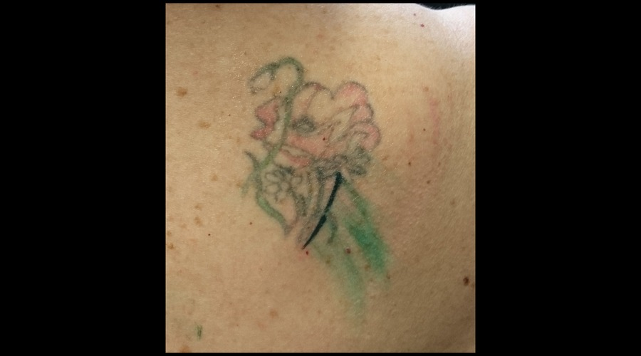 Flower  Before  Rework  Colour Shoulder