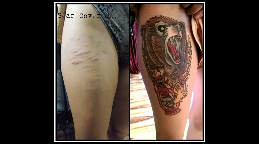 Scar Cover Up  Scar Color Thigh