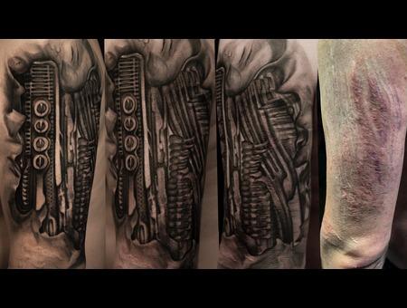 Scars Arm