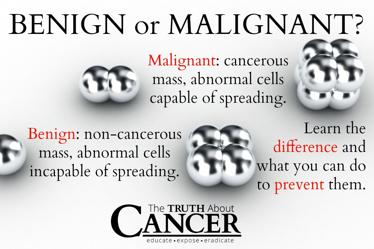 brain tumors the truth about cancer all articles about