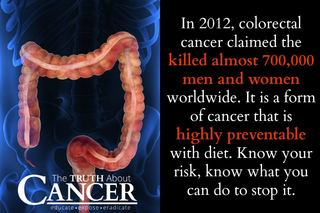 how to prevent colon cancer: risks. symptoms & prevention, Human Body