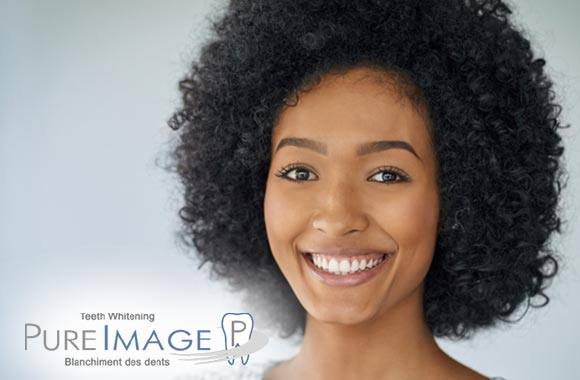 Blanchiment dentaire professionnel