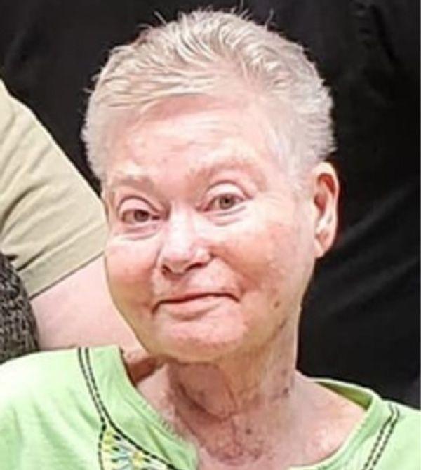 Judy  Packer Edgar