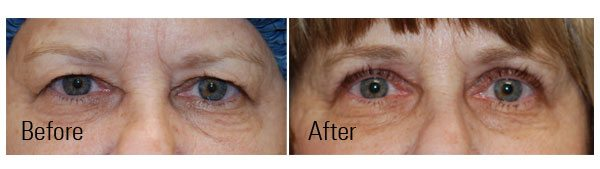 What Can Doctors Do to Treat a Droopy Eyelid & Brow? And, Is