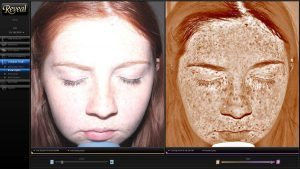 A picture of a young woman with an image of her skin results.