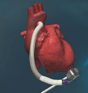 picture of the HeartMate 3 attached to a heart.