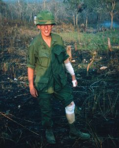 A young J.D. Hill with bandages on his arm and leg.