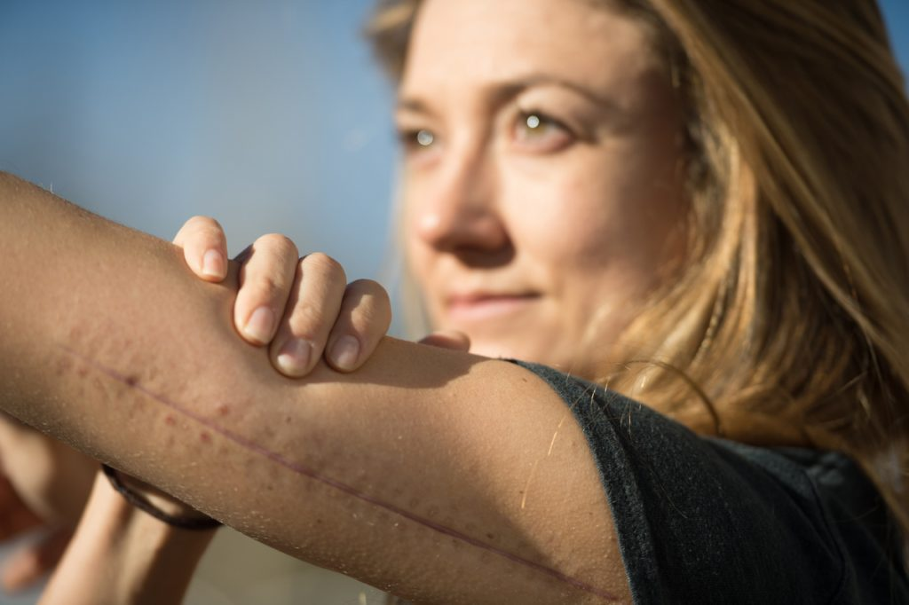 Allie Walsh shows off the long scar on her arm. She fell and broke her arm while training in halfpipe skiing in New Zealand in October.