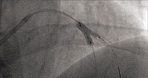 A photo of an LAD stent