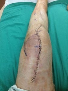 Archie Chant's leg after the distal femur replacement surgery. His leg looks really bad. It has staples from the thigh to below the knee.