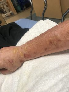 A young man ended up with severe burns and blisters after a cooking accident. He shows off his burnt arm.