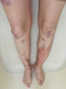 photograph of women's legs that shows multiple scaring and leg graphs.