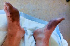 Frostbite survivor, Alec Grimes' feet. Both are purplish from frostbite.