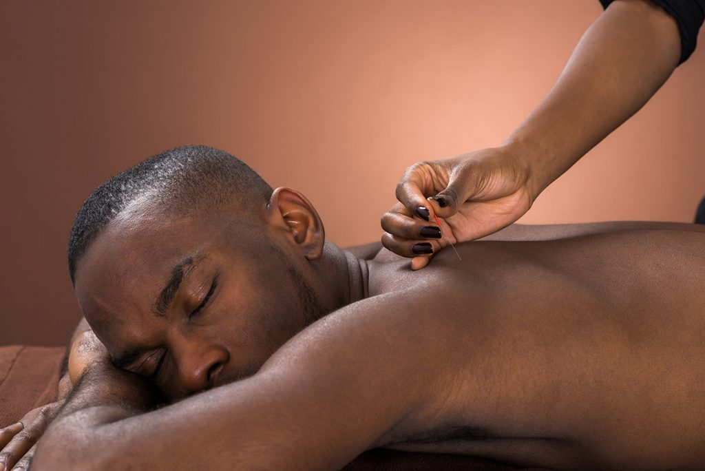 A man receives acupuncture in the area of his shoulder blades as there are benefits of acupuncture in winter.
