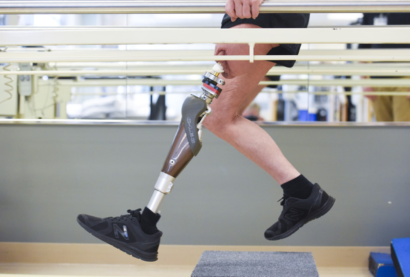 woman's two legs in running motion, one of which as the prosthetic attached through osseointegration surgery.