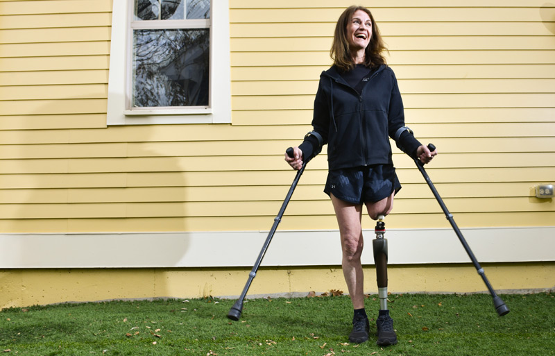 Woman, big smile on her face, uses crutches outside her home to help balance herself shortly after osseointegration surgery gave her new stability to her ambulated leg.