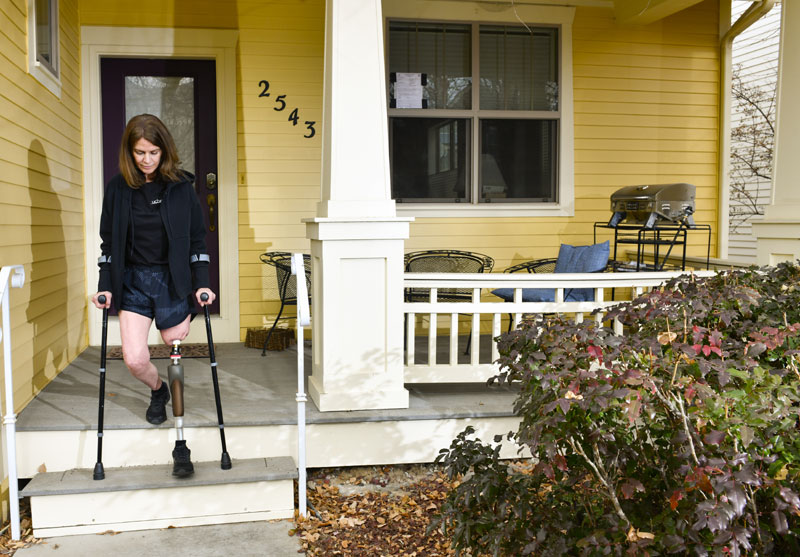 Woman uses crutches to get down porch steps of her home to help balance herself shortly after osseointegration surgery gave her new stability to her ambulated leg.