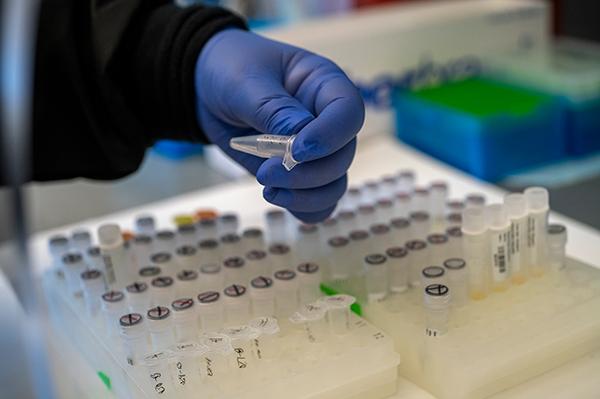 antibody testing for COVID-19 in Colorado