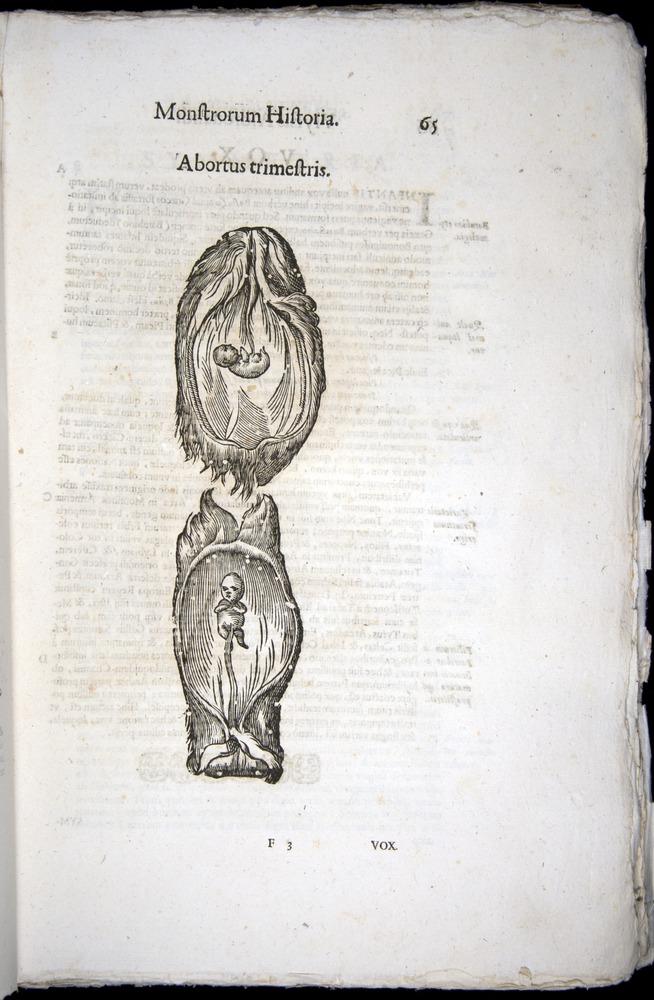 Image of Aldrovandi-1570-0065