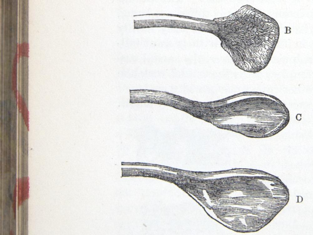 Image of Darwin-F878.1-1868-zzzzzz-det-00268