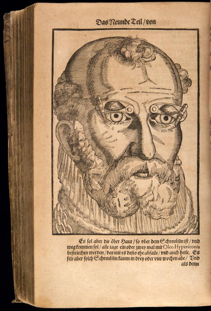Image of Bartisch-1583-181v