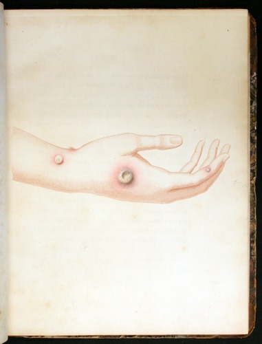 Image of Jenner-1798-032-pl