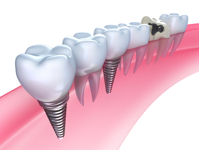 Jawline of dental implants in Brooklyn