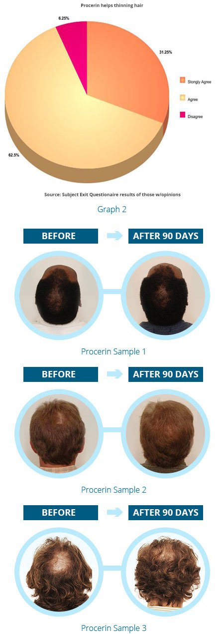 Results from the Procerin Research Study