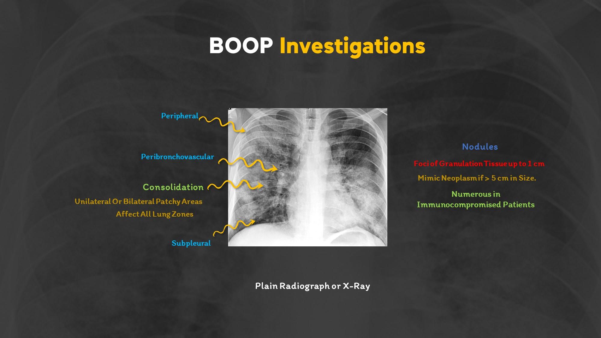 Bronchiolitis Obliterans Organizing Pneumonia (BOOP)