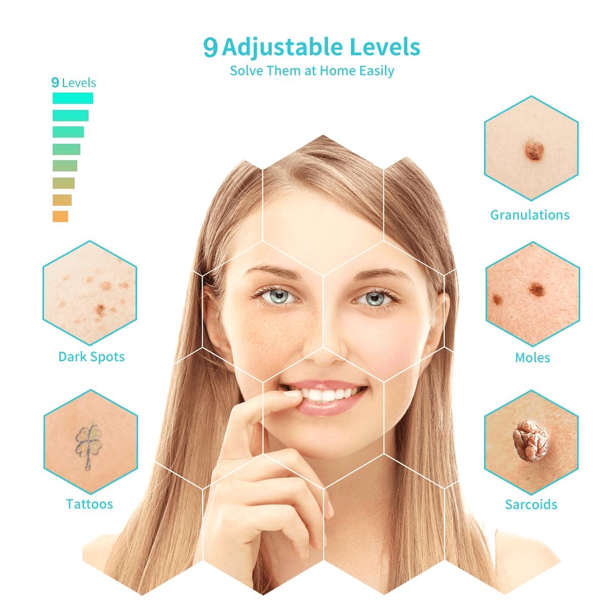 Professional Rechargeable Mole Freckle 9 Adjustable Levels