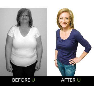 U Weight Loss Clinics logo