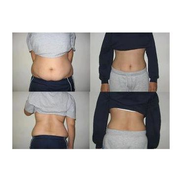 Amazing 3 Wrap Results
