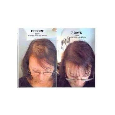 It Works Hair skin & Nails