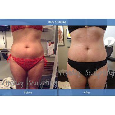fat removal toning skin tightening