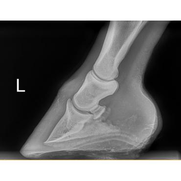 Radiographie numérique dernier cri