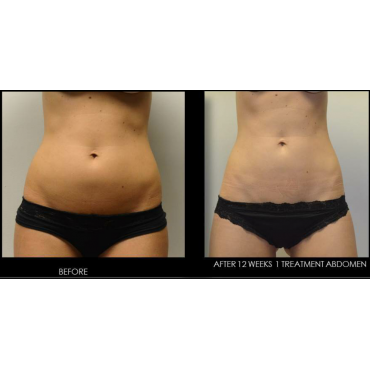 SculpSure: Before and After