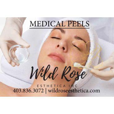 Medical Peels