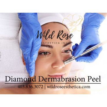 Diamond Dermabrasion Peel