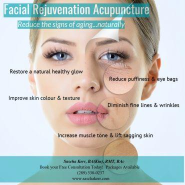 Facial Rejuvenation/Cosmetic Acupuncture
