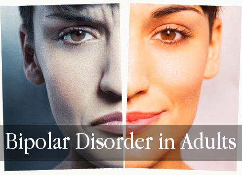 Bipolar Disorder in Adults - New CE Course from PDResources.org!