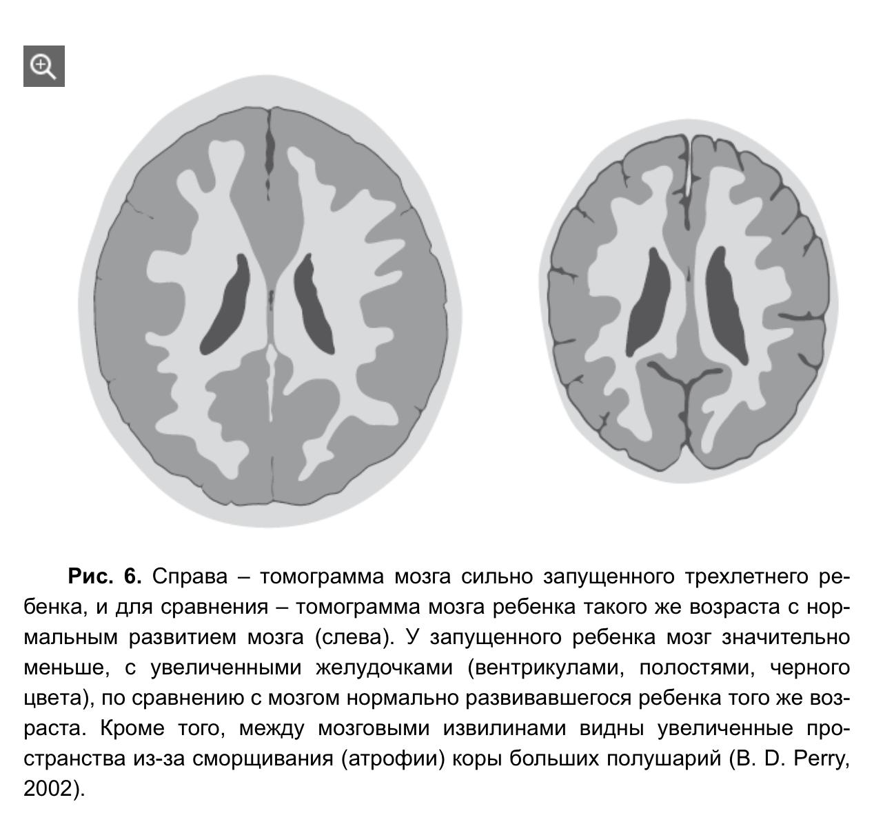 О влиянии окружения на мозг ребенка