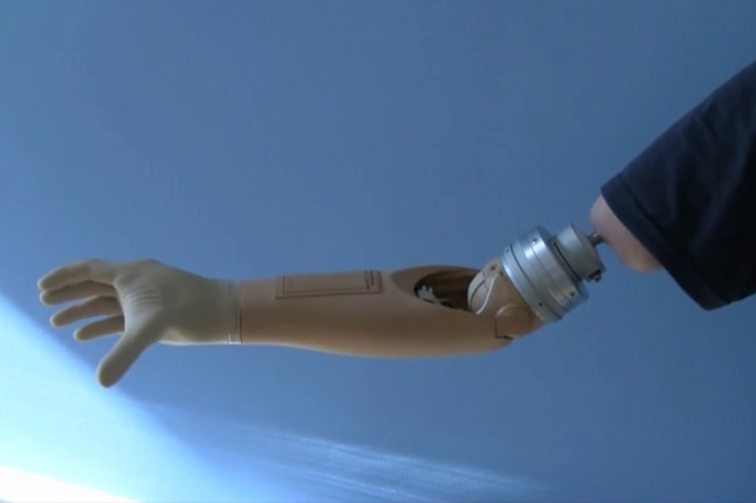 This Mind Controlled Prosthetic Arm Is Like Something Out Of Star Wars