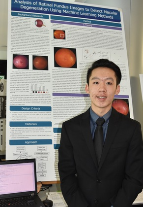Analysis of retinal fundus images to detect macular degeneration