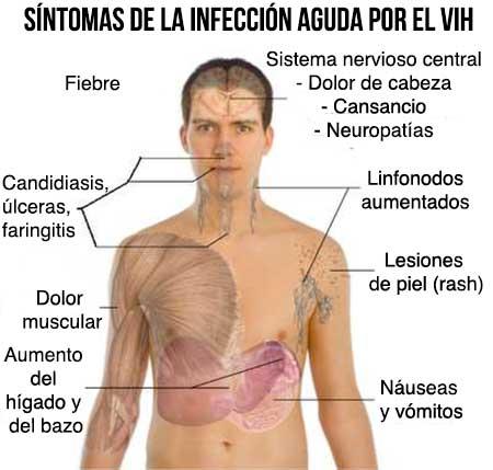 Resultado de imagen para sintomas del vih
