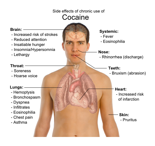 cocaine awareness - by kylee alford [Infographic]