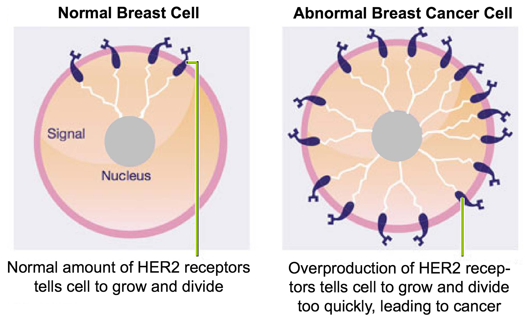 Signal transduction cancer by erin romero infographic tumor cells ccuart Images