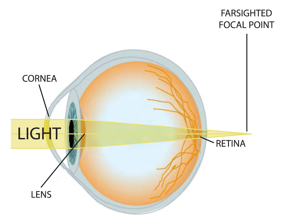 Human eye infographic by sean mclaughlin infographic astigmatism and farsightedness ccuart Choice Image