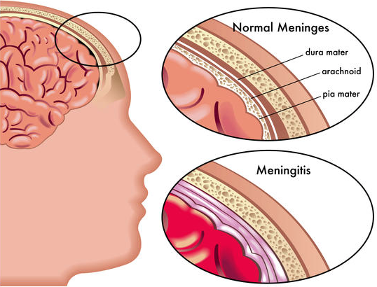 viral meningitis - by ashley mountford [infographic], Human body