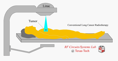 Radiation Therapy for Lung Cancer  verywellhealthcom