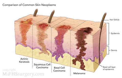 Skin Cancer Cc By Songkran Ellis Infographic